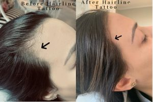 Procosmediq Before and After Scalp and Hairline Tattoos Beauty Over 40