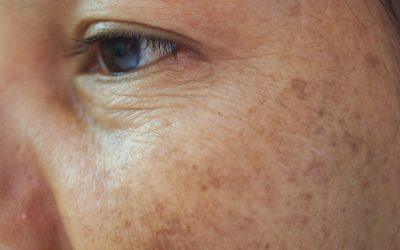 Hyperpigmentation – Causes & Cures